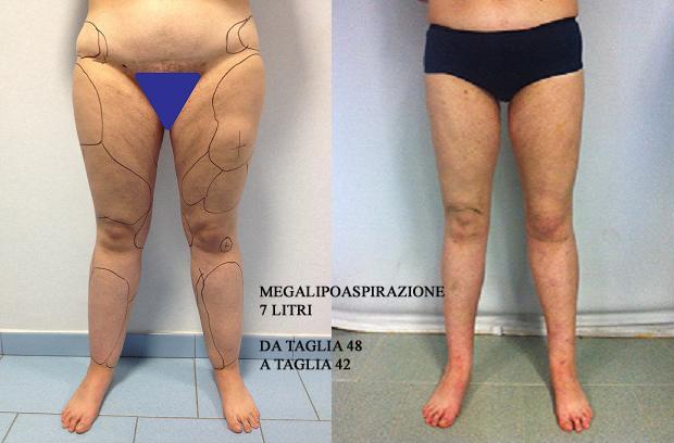 Corpo dott massimiliano tripoli for Interno coscia a corpo libero